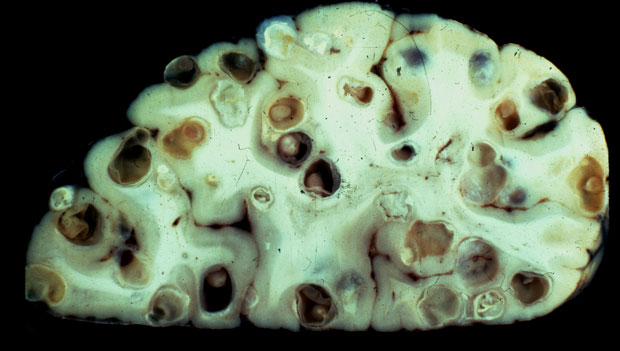 160512_neurocysticercosis