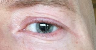 Tjek pupillen - var ved øjenlægen i går og fik noget i der får pupillen til at udvide sig :-)