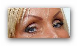 090514_eyesurgery